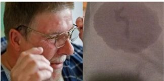 Ada cairan bening yang keluar dari telinga Mark.