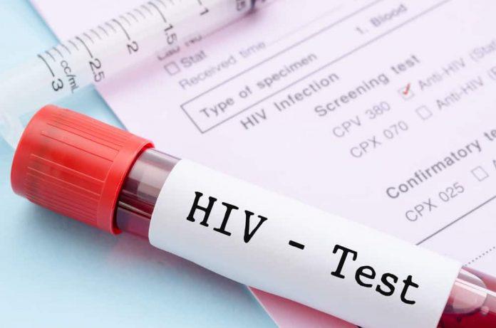 Ilustrasi Tes HIV.