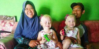 Anak Kembar Albino Mirip Bule di Wonogiri.
